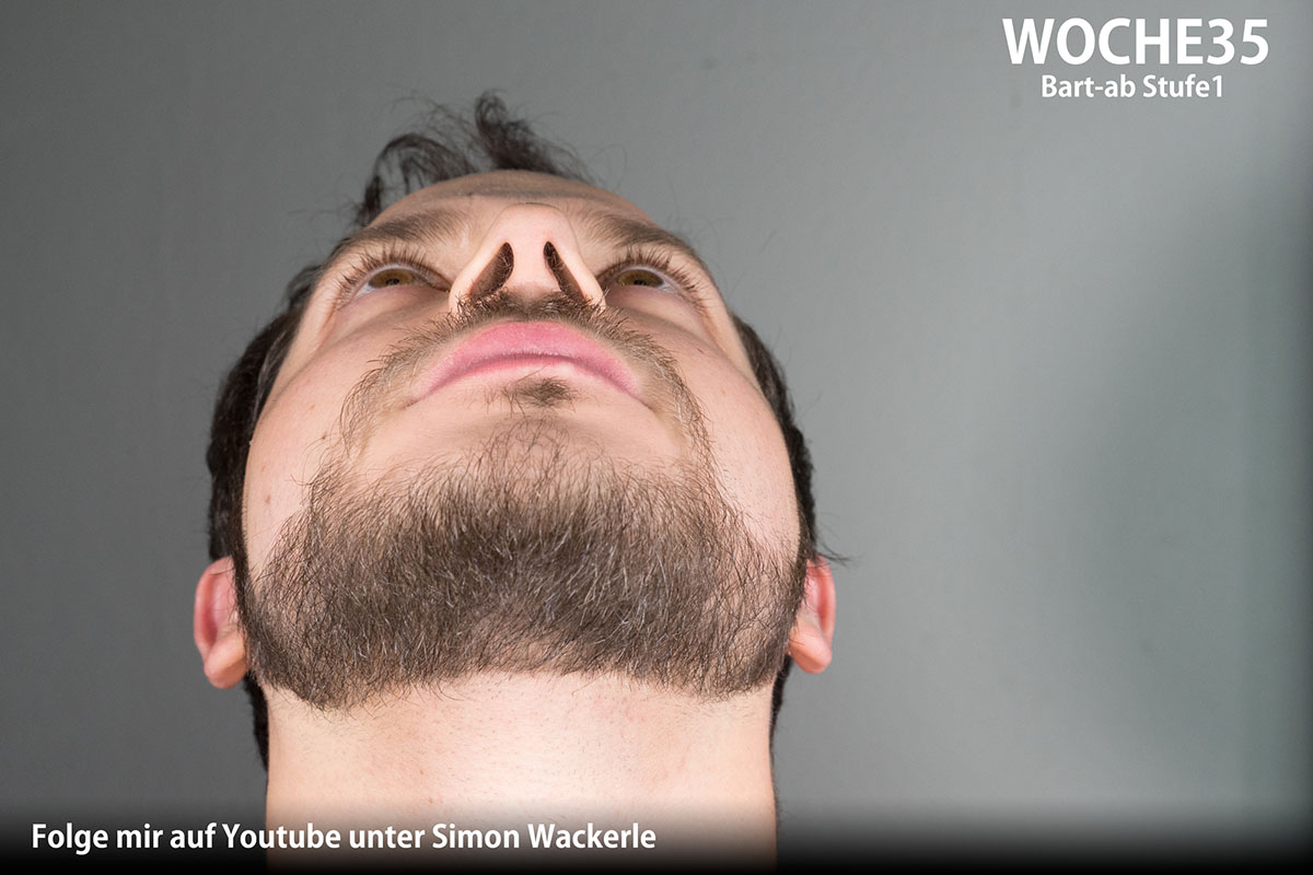 Minoxidil Bart Nebenwirkung