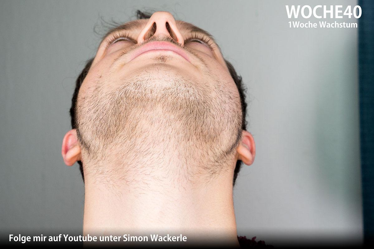 Bartwuchs anregen und beschleunigen - Zwei Jahre Minoxidil