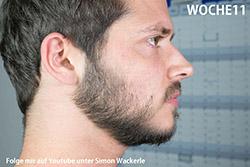 Bartwuchs erfahrungen minoxidil ᐅ Warnung!